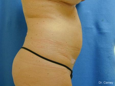 Virginia Beach Liposuction 1279 - Before Image 2