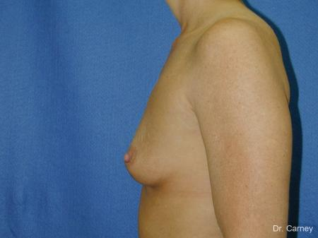 Virginia Beach Breast Augmentation 1081 - Before Image