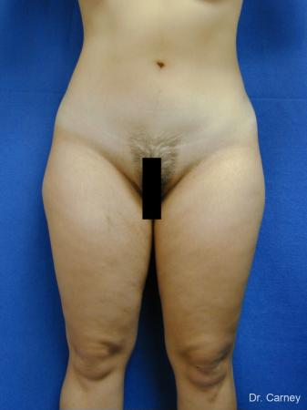 Virginia Beach Liposuction 1285 - Before Image 2