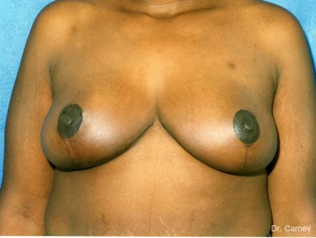 Virginia Beach Breast Lift 1189 -  After Image 1