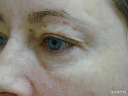 Virginia Beach Eyelid Lift 1138 - Before and After Image 3