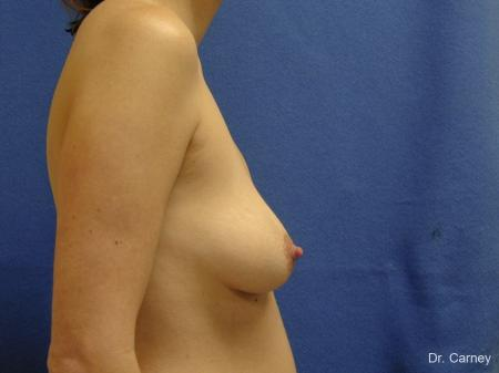 Virginia Beach Combo Procedures Breast 1182 - Before and After Image 3