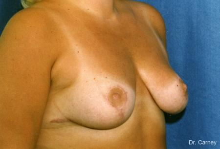 Virginia Beach Breast Lift 1190 - After Image
