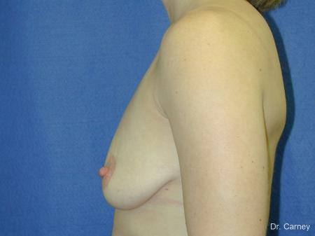 Virginia Beach Combo Procedures Breast 1099 - Before Image 2