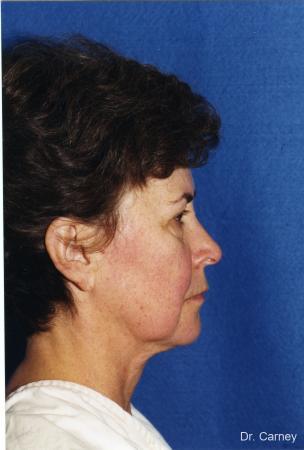 Virginia Beach Laser Skin Resurfacing - Face 1259 - Before Image 2