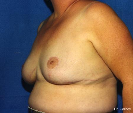Virginia Beach Breast Lift 1186 -  After Image 3