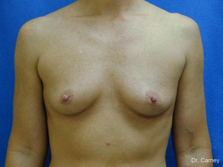 Virginia Beach Breast Augmentation 1214 - Before Image 1
