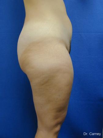 Virginia Beach Liposuction 1285 - Before Image 4