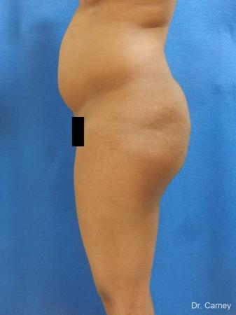 Brazilian Butt Lift: Patient 6 - Before Image 1
