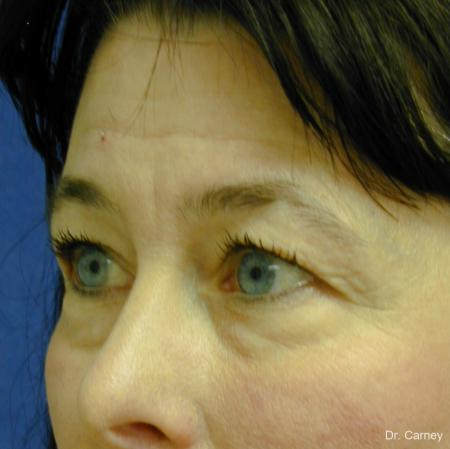 Virginia Beach Eyelid Lift 1139 - Before and After Image 3