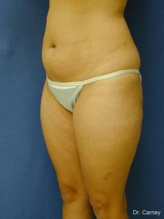 Virginia Beach Liposuction 1284 - Before Image 2