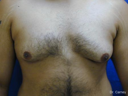 Virginia Beach Gynecomastia 1255 - Before Image 4