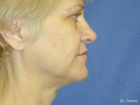 Virginia Beach Facelift 1346 - Before and After Image 5