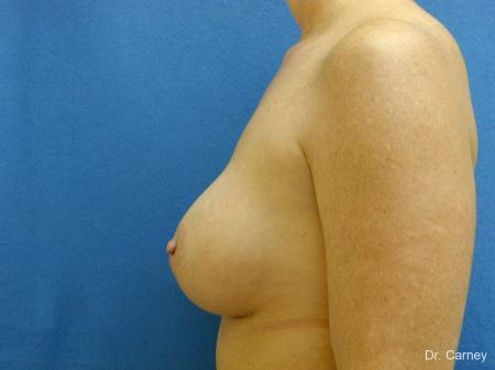 Virginia Beach Breast Augmentation 1214 -  After Image 5