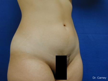 Virginia Beach Liposuction 1276 - Before Image 2