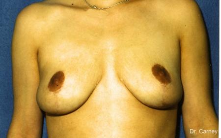 Virginia Beach Breast Lift 1191 -  After Image 1