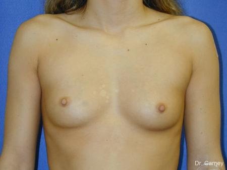 Virginia Beach Breast Augmentation 1097 - Before and After Image 3