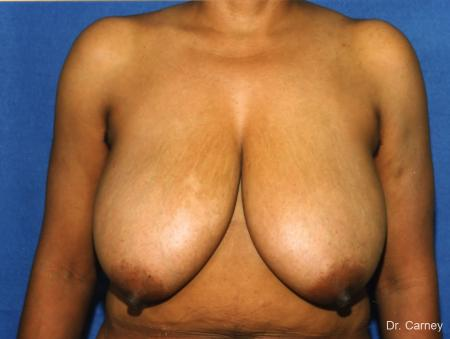 Virginia Beach Breast Reduction 1228. - Before Image