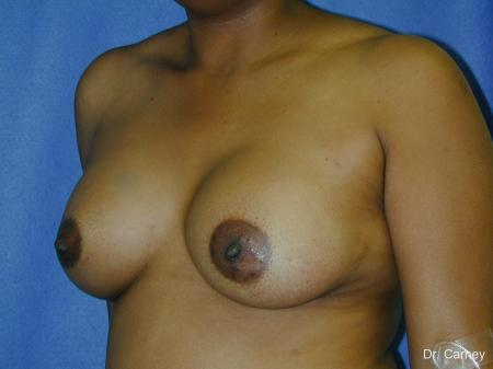 Virginia Beach Breast Augmentation 1091 -  After Image 3