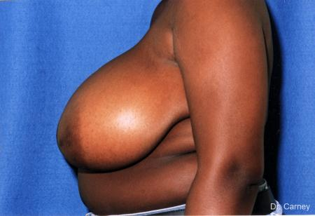 Virginia Beach Breast Reduction 1233 - Before and After Image 2