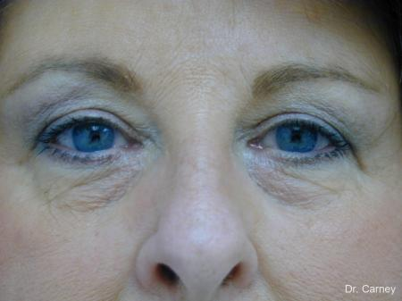 Virginia Beach Eyelid Lift 1129 - After Image