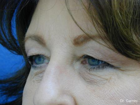 Virginia Beach Eyelid Lift 1129 - Before and After Image 3