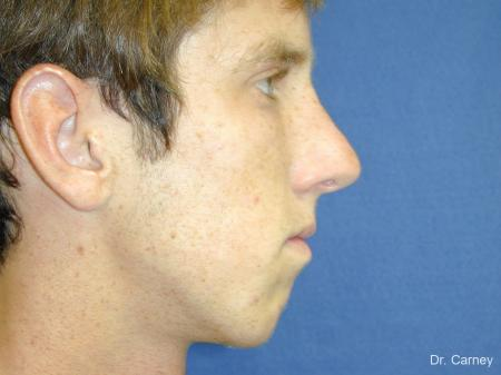 Virginia Beach Rhinoplasty 1219 -  After Image 1