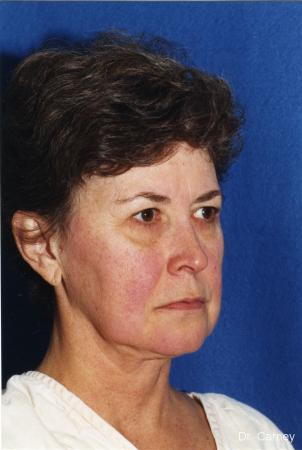 Virginia Beach Facelift 1134 - Before Image
