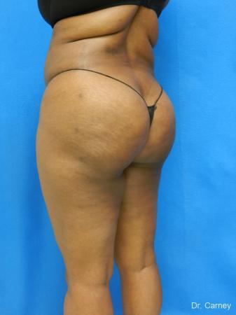 Brazilian Butt Lift: Patient 4 - After Image 2