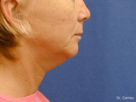 Virginia Beach Neck Lift 1264 - Before and After Image 2