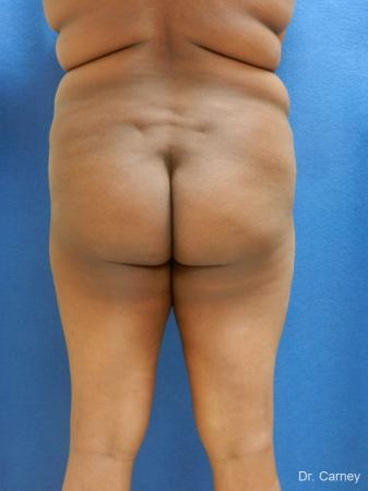 Brazilian Butt Lift: Patient 5 - Before Image 3