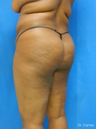 Brazilian Butt Lift: Patient 4 - Before Image 2