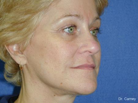 Virginia Beach Brow Lift 1345 - After Image