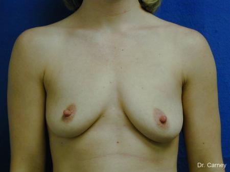 Virginia Beach Combo Procedures Breast 1099 - Before Image