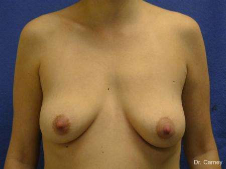 Virginia Beach Combo Procedures Breast 1182 - Before Image 1