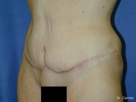 Virginia Beach Tummy Tuck 1249 - After Image