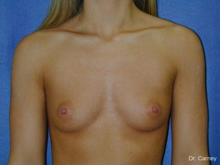Virginia Beach Breast Augmentation 1193 - Before Image 1