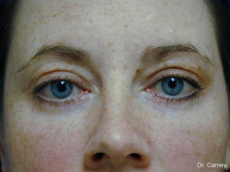 Virginia Beach Eyelid Lift 1138 - After Image