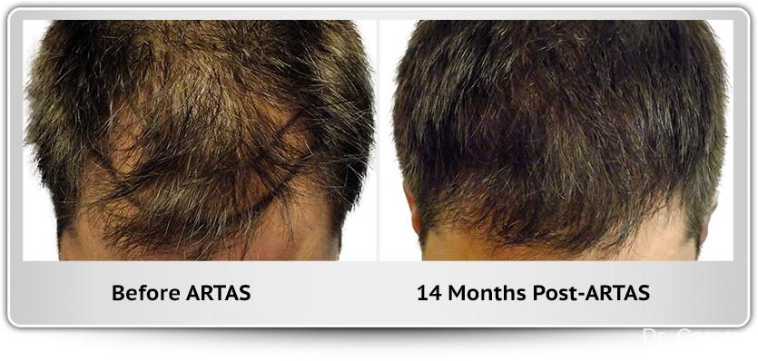 Hair Transplantation: Patient 1 - Before and After Image