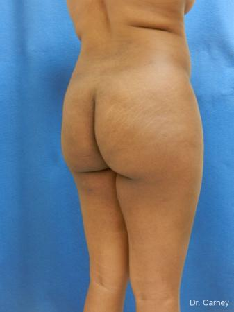Brazilian Butt Lift: Patient 6 - Before Image 4