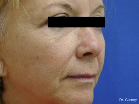 Virginia Beach Brow Lift 1266 - Before Image