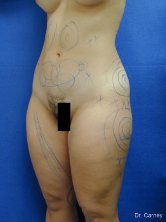 Virginia Beach Liposuction 1285 - Before Image 3