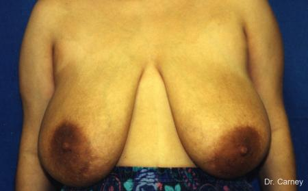 Virginia Beach Breast Lift 1191 - Before Image