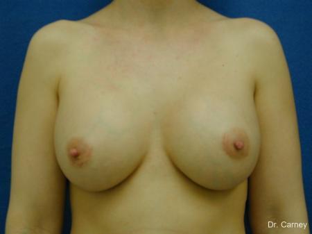 Virginia Beach Breast Augmentation 1086 -  After Image 3
