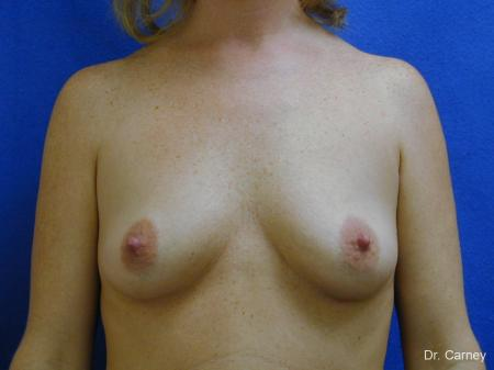 Virginia Beach Combo Procedures Breast 1098 - Before and After Image 3
