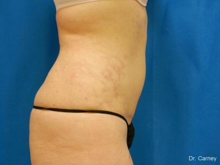 Virginia Beach Tummy Tuck 1251 -  After Image 3