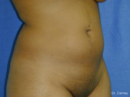 Virginia Beach Liposuction 1283 - Before Image 1