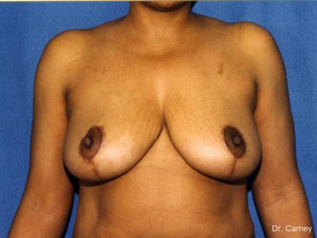 Virginia Beach Breast Reduction 1228. - After Image