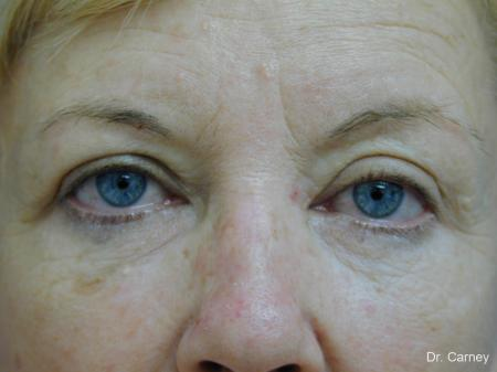 Virginia Beach Brow Lift 1266 - Before Image 3