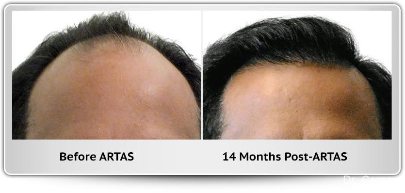 Hair Transplantation: Patient 11 - Before and After Image 1